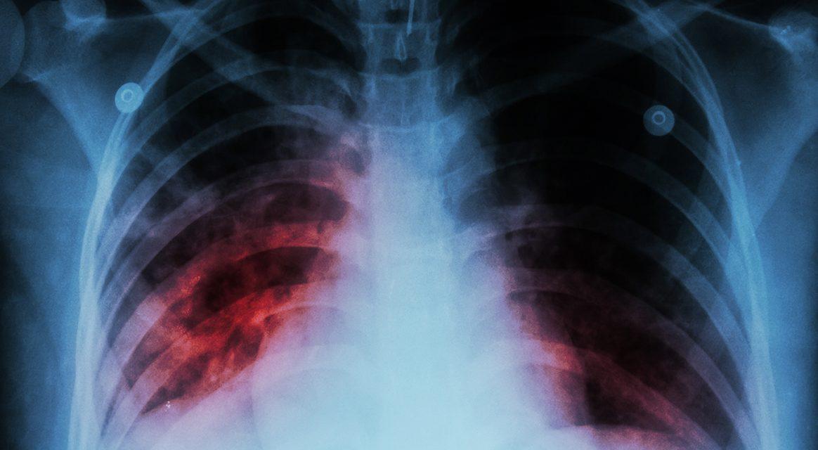 Minsa realiza acciones para el control de tuberculosis en tiempos de pandemia por covid-19
